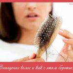Выпадение волос и как с этим бороться?