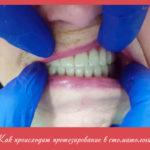 Как происходит протезирование в стоматологии?