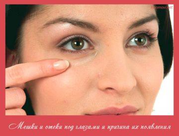 Мешки и отеки под глазами и причина их появления